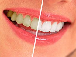 Teeth-Whitening in Coral Springs, FL | Rovismilecenter