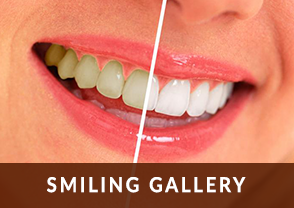 Smiling Gallery in Coral Springs, FL | Rovismilecenter