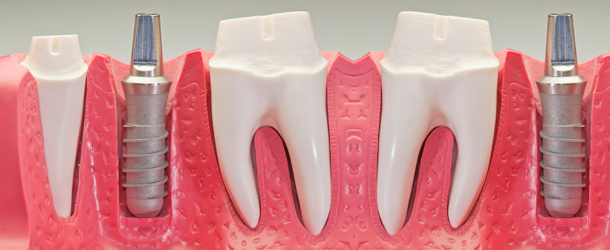 Dental Implants in Coral Springs, FL | Rovismilecenter