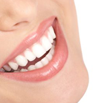 Veneers in Coral Springs, FL | Rovismilecenter
