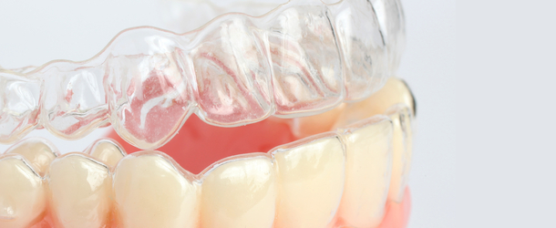 Invisalign in Coral Springs, FL | Rovismilecenter