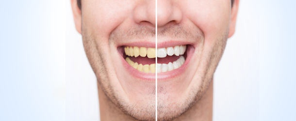 whitening in Coral Springs, FL | Rovismilecenter