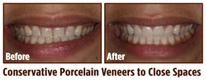 conservative porcelain veneers to close spaces in Coral Springs, FL | Rovismilecenter