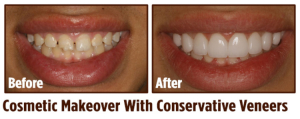 Cosmetic Makeover in Coral Springs, FL | Rovismilecenter