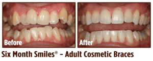 Six Month Smiles in Coral Springs, FL | Rovismilecenter